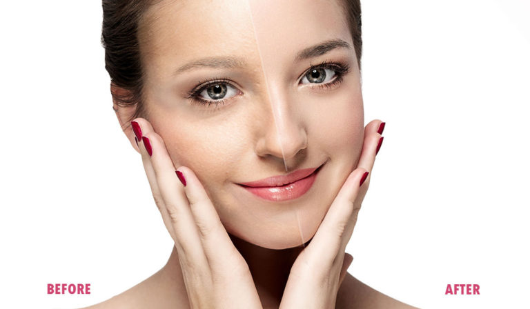 Overview and Advantages of Skin Needling
