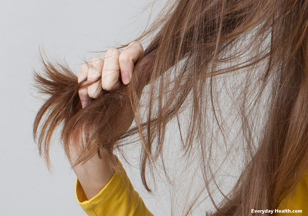 Hair Loss and How It Affects Your Life